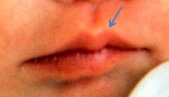 Upper Lip Cupid's Bow