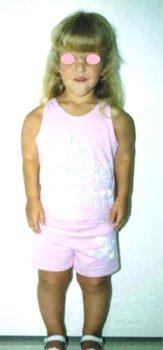 Achondroplasia Girl
