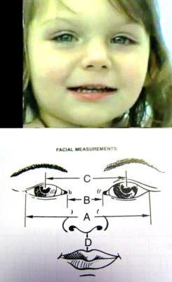 Semiology – Telorism – Ocular