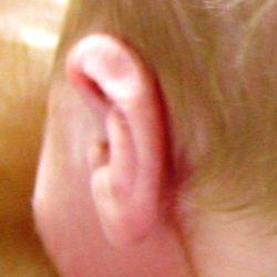 Ear Helix