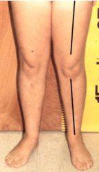 Long Limbs Carrying Angles - Cubitus or Genu Valgum or Varus