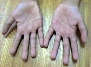 TPT Triphalangeal Thumb